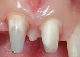 Reconstitution-coronaire Dentinea - Matériels pour dentistes