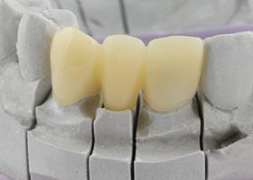 Resine-provisoire Dentinea - Matériels pour dentistes