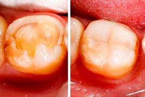 restauration Accueil | Dentinea